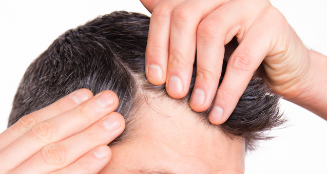 Erkeklerde Saç Dökülmesi Nedenleri