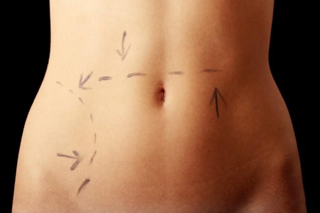 Karın Germe (Abdominoplasti)