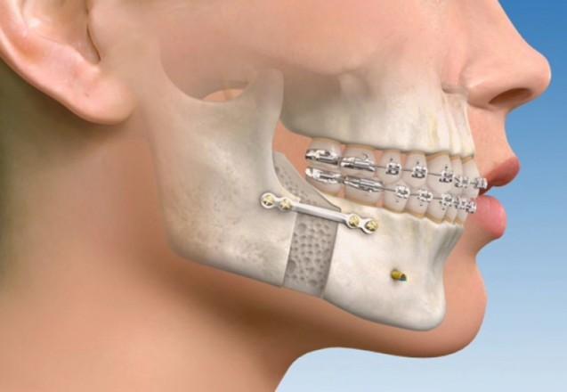 Ortognatik Cerrahi – Isırım Bozuklukları