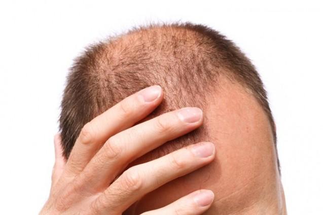 Saç Ekimi Fut Yöntemi